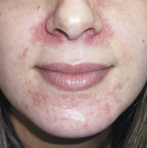 facial mask rash