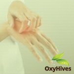 Combat acute urticaria with Oxyhives