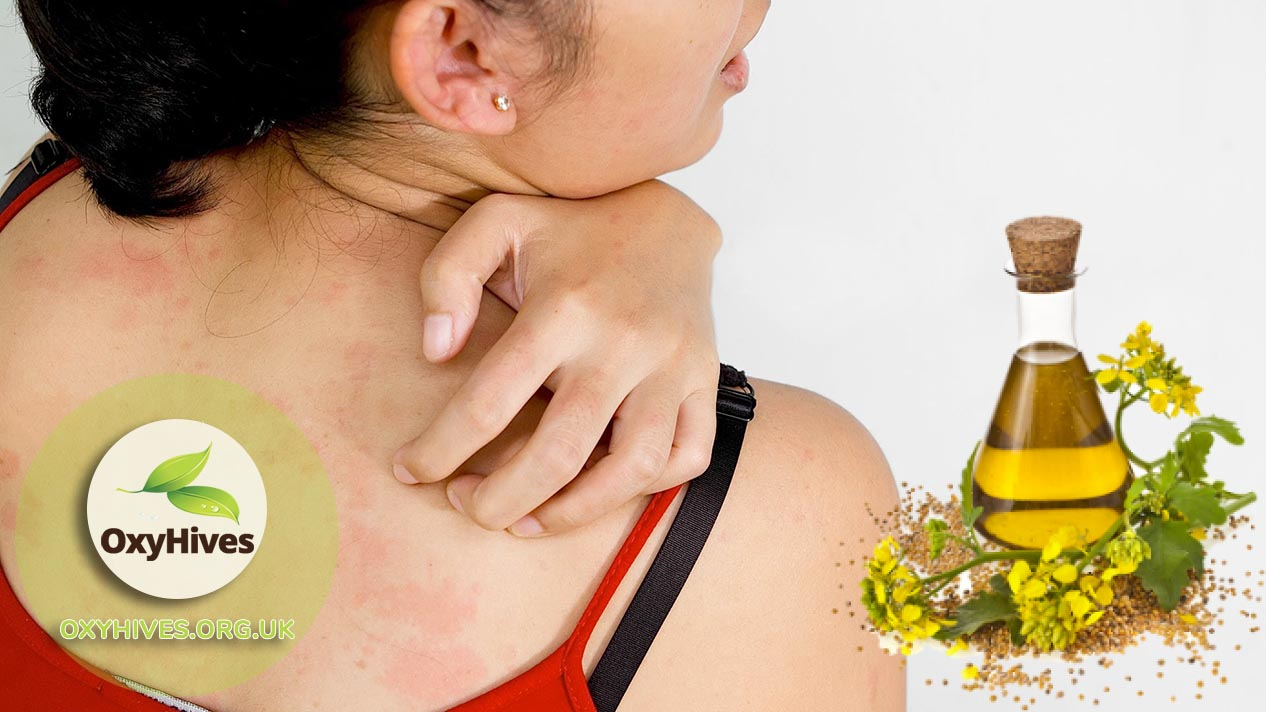 Essential oils to fight hives