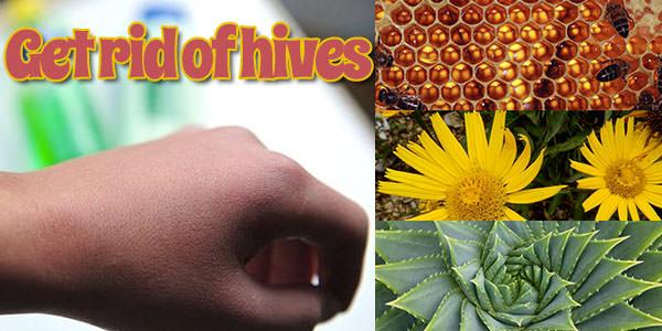 Hives home treatment