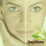 Before and after OxyHives - treat allergies naturally